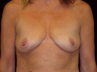 Breast augmentation before 293954