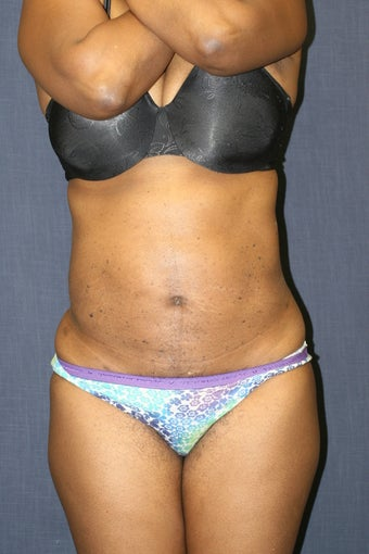 Liposuction of all areas of the abdomen. Liposuction of the flanks and hip rolls to accentuate the waist. after 545047