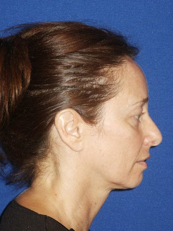 Facelift, Endoscopic Browlift, Upper and Lower Blepharoplasty before 248889
