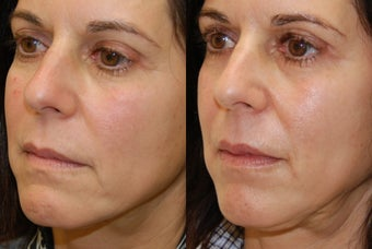 Lip Augmentation with Silikon-1000 before 407825