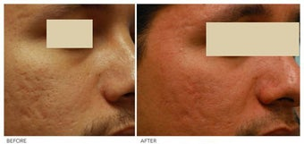 Acne Scarring Correction before 136804
