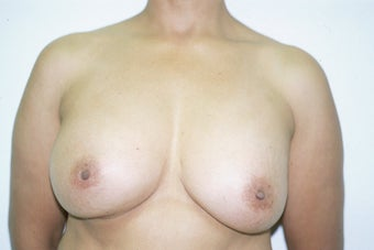 Breast Implant Removal and Lift before 589932