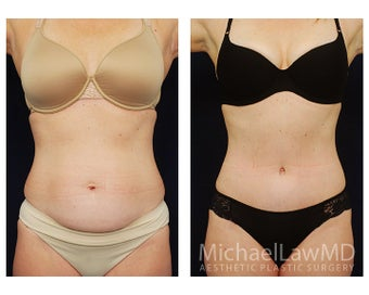 Abdominoplasty - Tummy Tuck before 396017