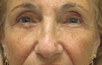 Browlift, ptosis repair, lower bleph and cheek lift after 433555