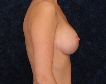 Breast Augmentation 321993