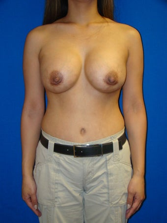 Breast Augmentation Revision after 77582