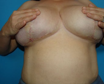 Scar revision breast after 379125