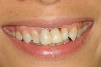 Ortho, dental implants, bone graft, gum graft, all porcelain veneers before 503156