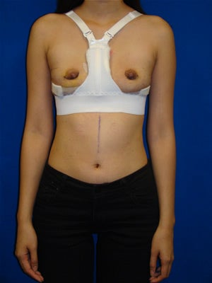 Breast Reconstruction Symmastia Repair after 121759