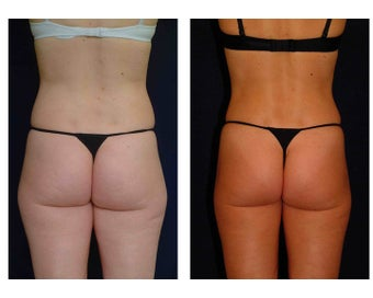 Liposuction before 286696