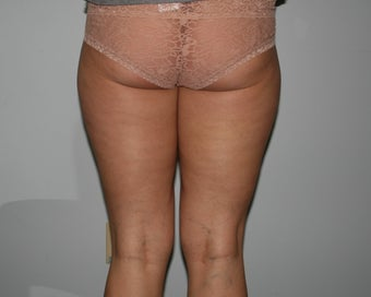 Liposuction of the Hips and Thighs 644849