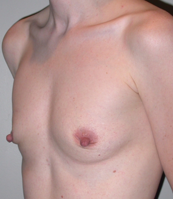 Breast Augmentation before 275701