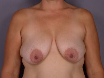 Breast lift and Implants before 306360