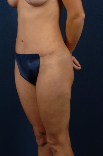 Abdominoplasty (tummy tuck) after 267681