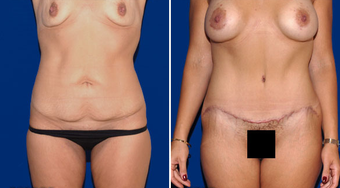 Tummy Tuck before 495843