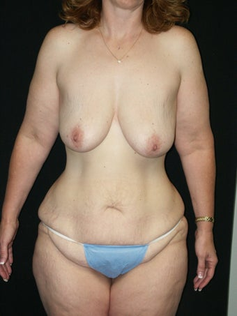 Belt Lipectomy and Breast Lift before 379775