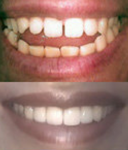 Porcelain Veneers before 109196