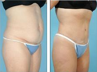 Tummy Tuck (Abdominoplasty) after 324853