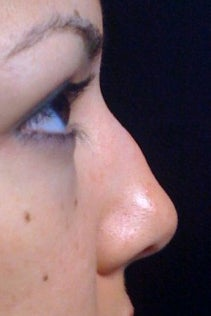 Lunch Time Nose Job using Radiesse before 152207