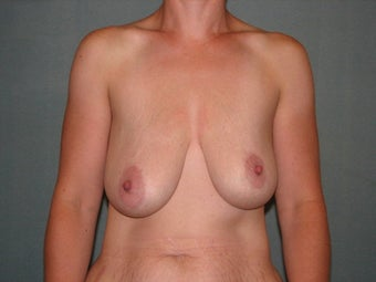 breast lift with augmentation before 403874