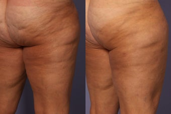 Cellulaze before 607929