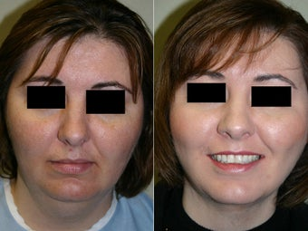 Submental and Neck Liposculpture after 312467