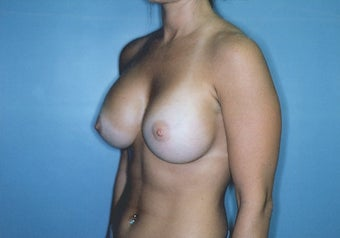 Breast Augmentation with High Profile Saline Implants after 261535