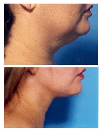 Chin Liposuction before 640693