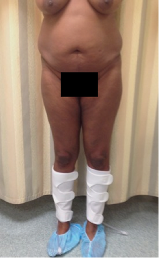 Liposuction and Fat Injection before 526160
