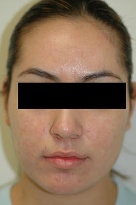 Laser Acne Treatment after 82948