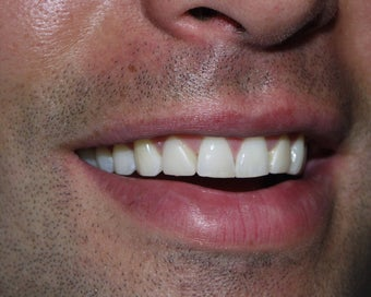 Veneers before 345500