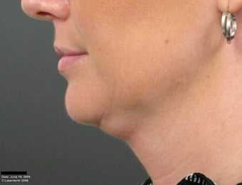 Ulthera Laser Skin Tightening before 346277