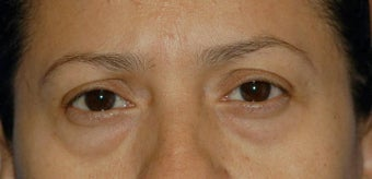 Upper and lower lid blepharoplasty and Fat Transfer to lower lids and midface before 307125