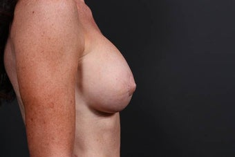 This patient underwent nipple reduction surgery in addition to a breast augmentation revision