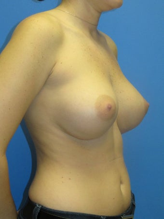 Breast Augmentation 348645