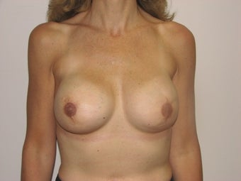 Breast reconstruction after mastectomy (after photos only) after 162800