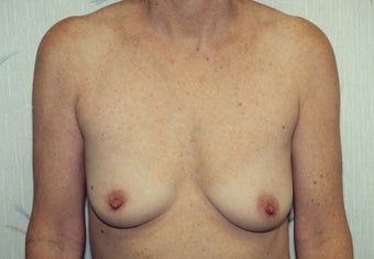 Breast Augmentation before 266793