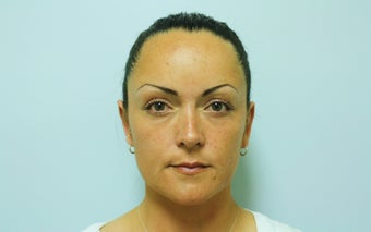 Otoplasty after 244314