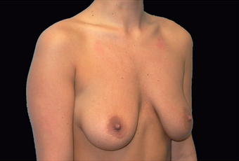 Breast augmentation and vertical mastopexy before 391300