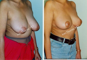 Breast Reduction before 243755