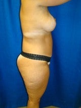 Breast Lift with Implants, Extended Tummy Tuck, 399479