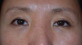 Asian Blepharoplasty to remove eye bags after 80806