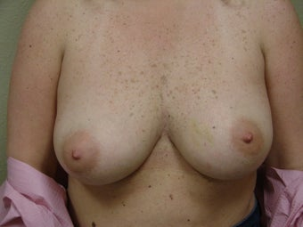 Breast Reconstruction after bilateral nipple sparring mastectomy before 344817
