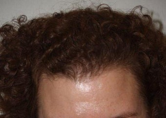 Hair Transplant after 224846
