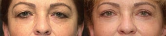 Upper Eyelid Blepharoplasty before 251725