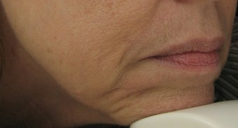 Fraxel re:pair (repair) CO2 laser for Mouth, Jowls, and Lips before 64890