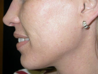 Acne scarring treatment after 122194
