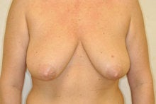 Breast Lift without Implants
