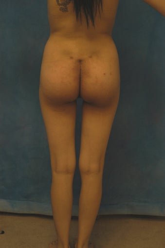Women's Buttocks Augmentation   518139