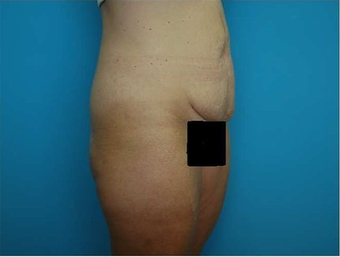 Abdominoplasty (Tummy tuck) 64683
